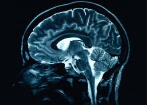 Brain Scan - Fort Mill and Rock Hill Head Trauma Lawyer